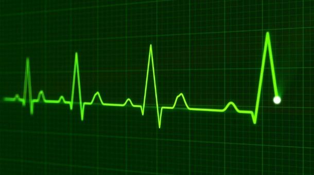 IVR Heartbeat